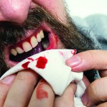 HEALTHY REASONING: Is There A Connection Between An Unhealthy Mouth And Rheumatoid Arthritis?