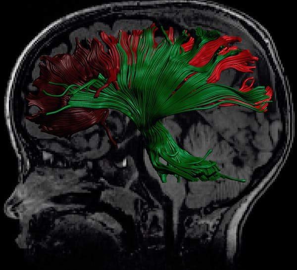 A structural MRI with an overlay of a speciality MRI, called diffusion tensor imaging, which is showing promise in detecting abnormalities after concussion. (Catherine Lebel and Dr. Jess Reynolds, Alberta Children's Hospital Research Institute) -- Author provided.